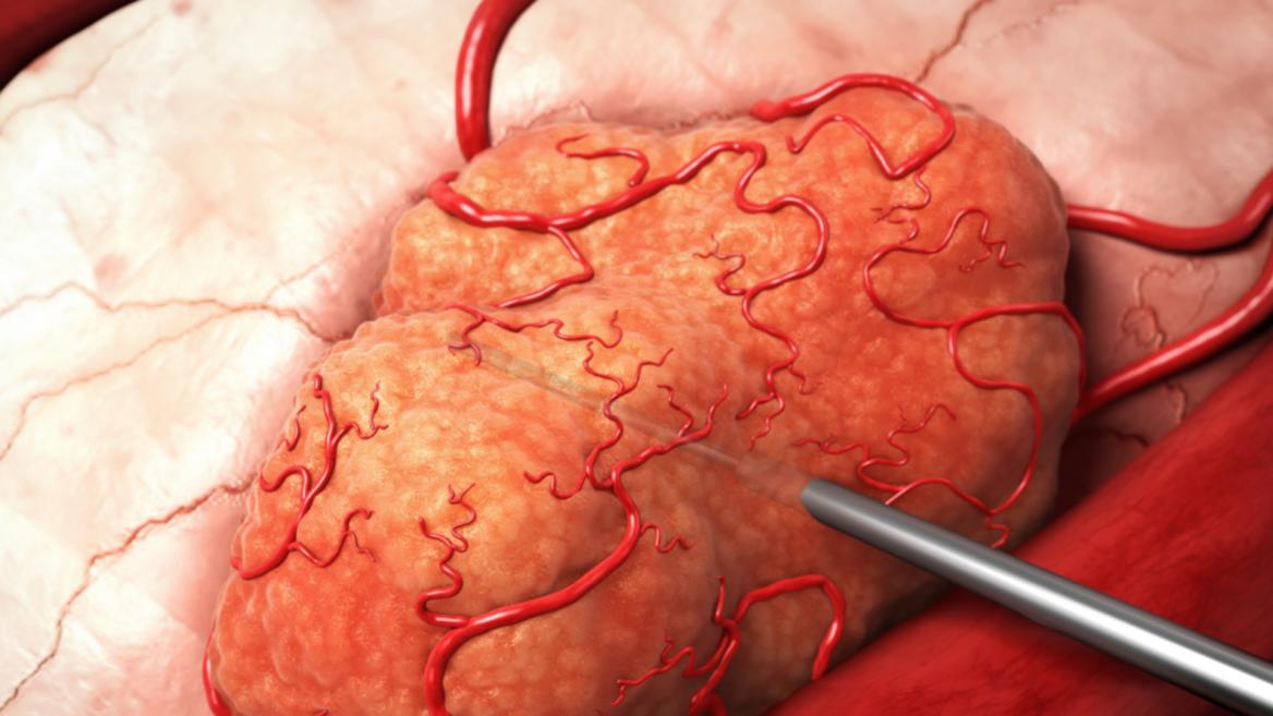 mejor resultado para el tratamiento del cáncer de próstata